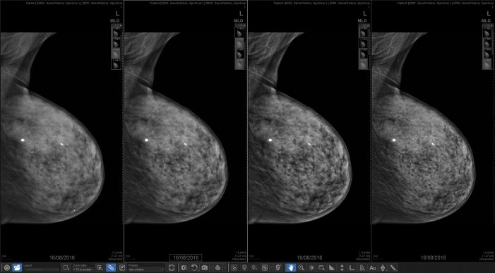Pictured: A clinical image of the breast taken with the Senographe Pristina.