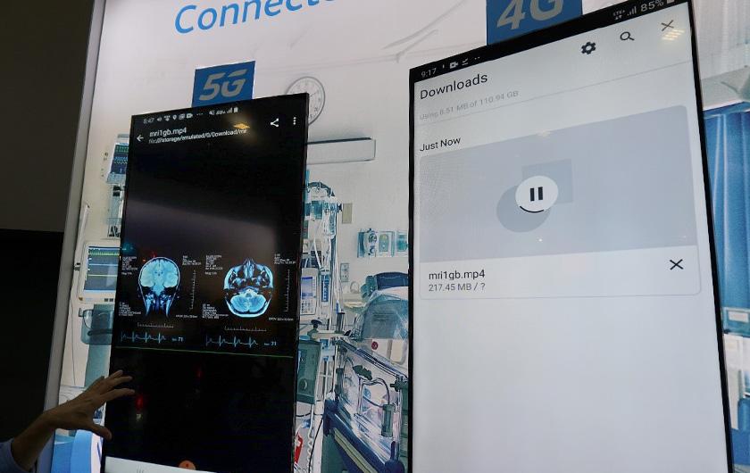 写真 : 米AT&TはCES2020でCTスキャン画像のダウンロードにおける4Gと5Gの速度差比較を紹介した(出所:日経BP総研)