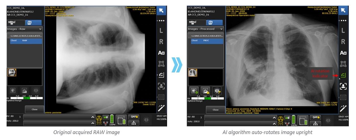 AI scan.jpg