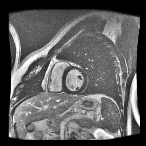 conventional cardiac.jpg
