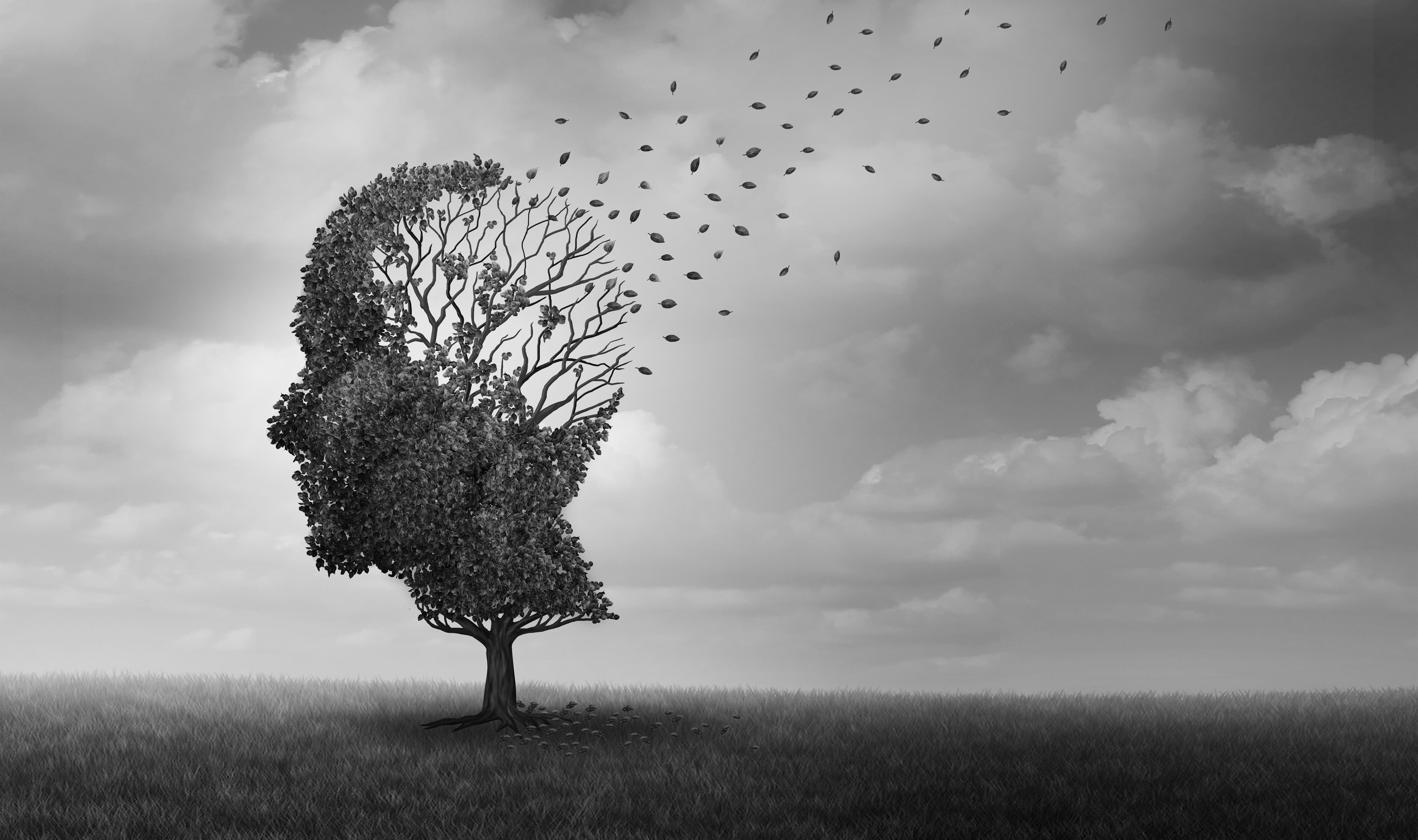 Alzheimer disease as a neuropathology memory loss due to brain degeneration and decline as a surreal medical neurology illness concept.