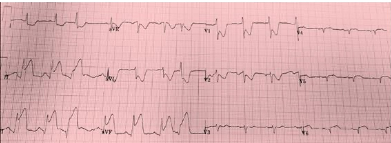 ECG Reciprocal Depression - Image 1.jpeg