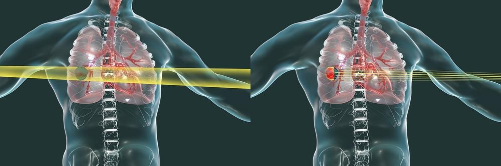X線(左)と重粒子線(右)
