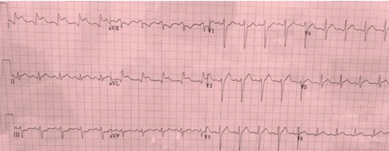 ECG Reciprocal Depression - Image 2.jpeg