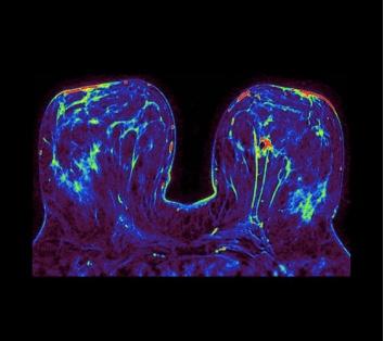 Elevated Breast Health Image 1.jpeg