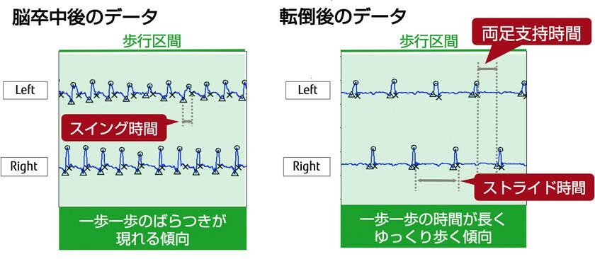 図 : 歩き方の波形と歩行特徴量の例(研究結果より)