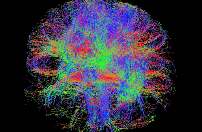 This image, taken on the SIGNA Premier, shows the fiber tracks of the brain, otherwise known as tractography. Image courtesy of Alan McMillan, PhD, Wisconsin Institutes for Medical Research, Department of Radiology, University of Wisconsin – Madison.