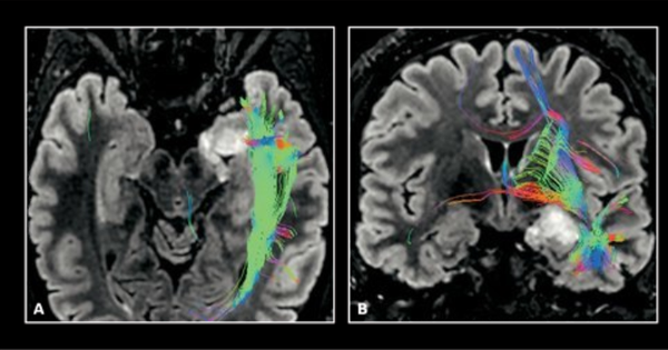 Importance Of The Head Coil And MR Neuro-imaging