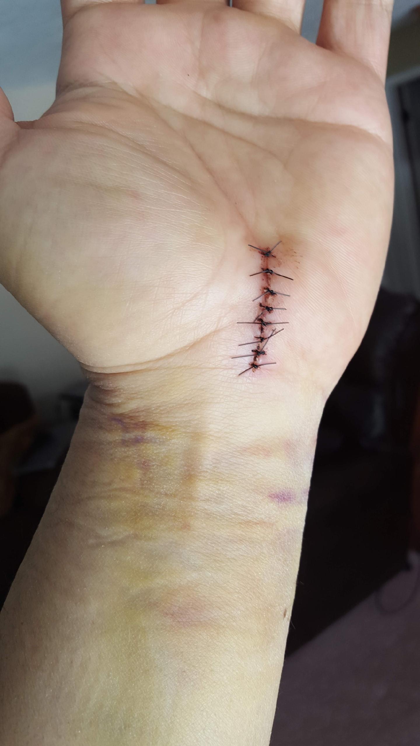 Ehab wrist post surgery.jpeg