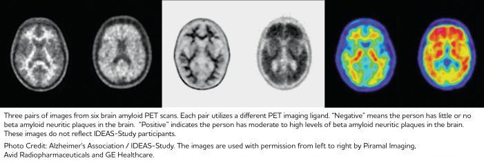 IDEAS Study BrainImage_Caption_022317